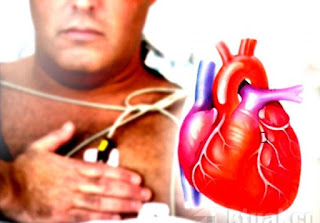Cara Pencegahan Penyakit Jantung