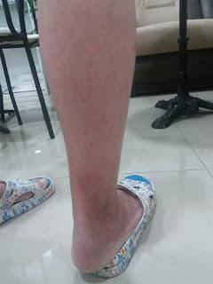 Мокнущие раны на ноге. Программа и результат от Аврора (Aurora)