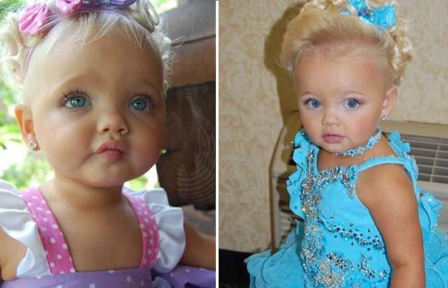 Через 7 лет малышка с ангельской внешностью утратила свою красоту