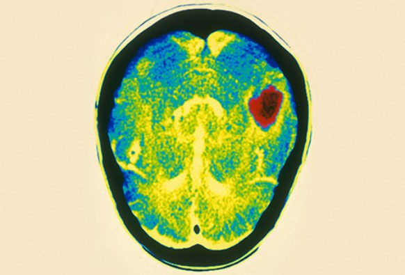 Brain Scan Showing Haemorrhage From Ruptured Brain Aneurysm