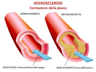 Colesterolo: le novità per abbassarlo
