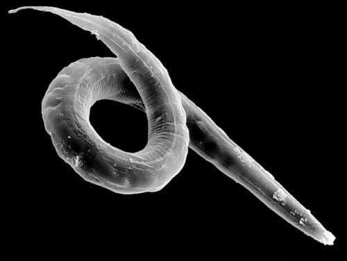 A menta platyhelminthes laposférgek jellemzői - Giardia bambini piccoli