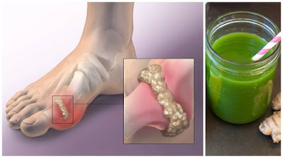 Remove Uric Acid From Your Joints With This Amazing Recipe