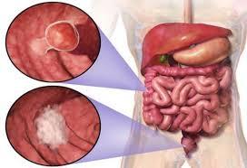 cara mengobati usus yang luka