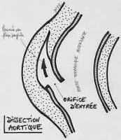 dissection aortique infirmier