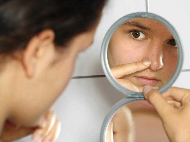 Jerawatmu Tambah Banyak Bukan Karena Wajahmu Sensitif, Tapi Karena Kamu Bandel Melakukan 7 Hal ini