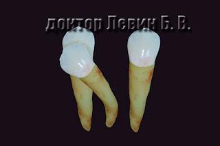 Неровные корни зубов