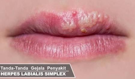 bahaya pakai lipstick