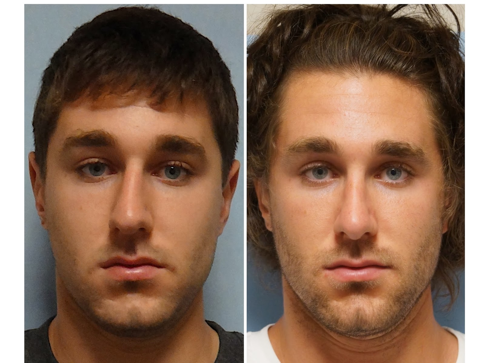 Facial Plastic Surgery: Male Rhinoplasty, Cosmetic