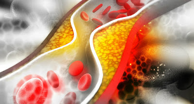 Kolesterol dalam darah