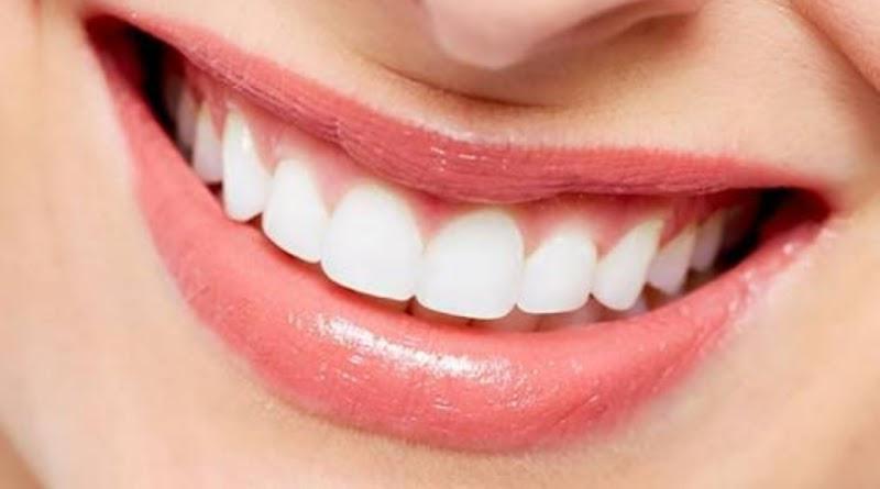 Sorriso gengival: deixa dermatologista ajudar você!