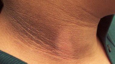 5 Tips Cara Menghilangkan Daki Dan Kulit Hitam di Leher Secara Mudah dan Cepat