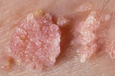 Foto Ciri-Ciri penyakit kelamin tumbuh di vagina dan di penis
