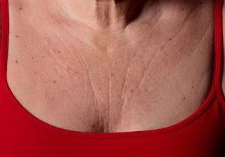 Masques anti-âge naturels pour effacer les rides de la poitrine et du cou