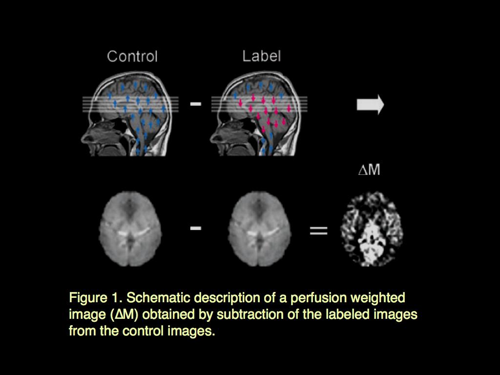 MRI BLOG: Arterial Spin Labeling (ASL)