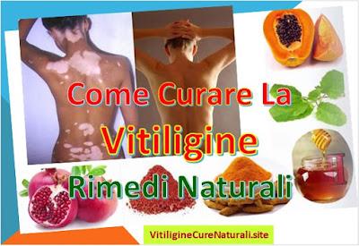 come-curare-la-vitiligine-in-modo-naturale-rimedi-casalinghi