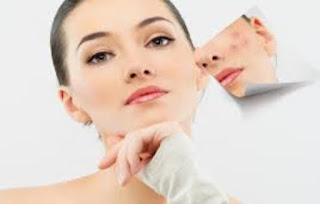 Natural Skin Care Tips To Cure Acne