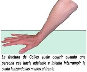FRACTURA DE COLLES PDF DOWNLOAD