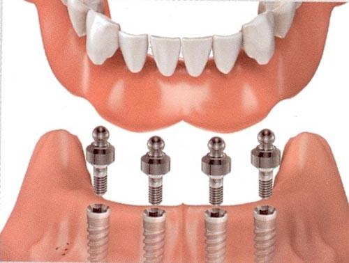 Hãy tìm hiểu Quy trình trồng răng Implant.