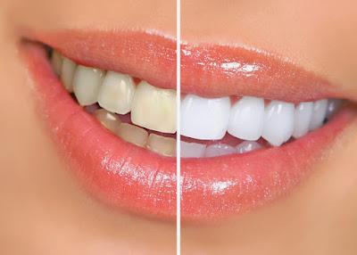 9 Cara Memutihkan Gigi Kuning Secara Alami Cepat Dan Permanen