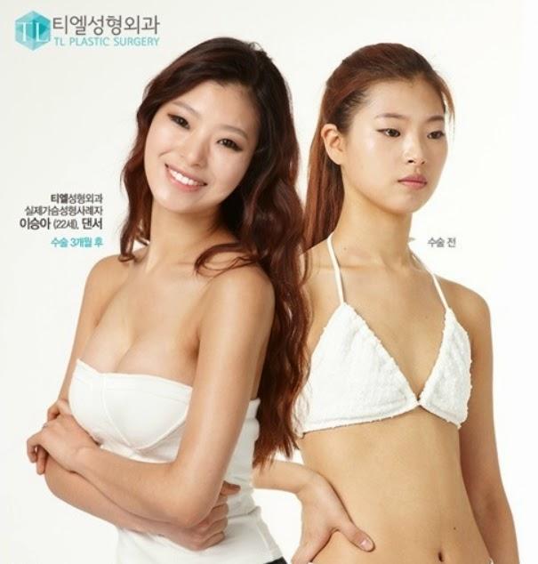 Bệnh Viện Thẩm Mỹ TL Hàn Quốc: [Breast augmentation] The ...