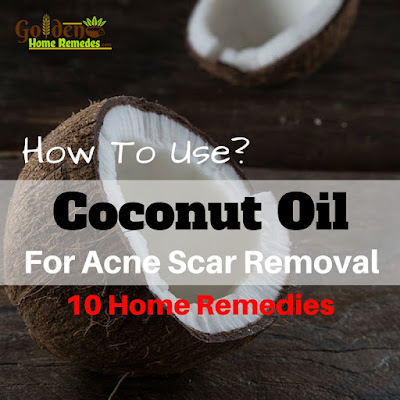 Coconut Oil For Acne Scars, Coconut Oil Acne Scars, Is Coconut Oil Good For Acne Scars, Does Coconut Oil Help Acne Scars, How To Use Coconut Oil For Acne Scars, Does Coconut Oil Work For Acne, Coconut Oil And Acne Scars,