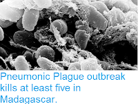 http://sciencythoughts.blogspot.co.uk/2017/09/pneumonic-plague-outbreak-kills-at.html