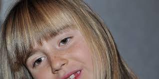 Punca Jeraga (Freckles)