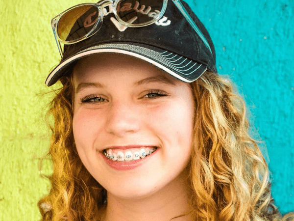 6 Things to Know About Braces