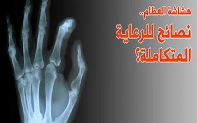 كيف تحافظ على صحة عظامك لتتجنب هشاشة وأمراض العظام