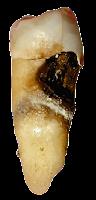 Karies pada bagian samping gigi