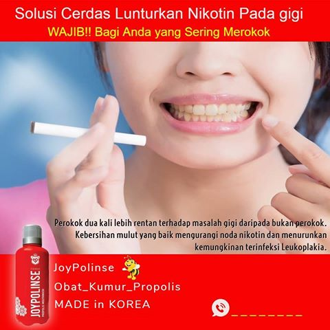 Lunturkan Nikotin Pada Gigi