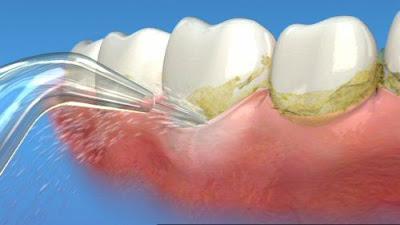 có nên cạo vôi răng khi đang mang thai không -3
