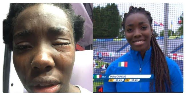 """Aggressione Daisy Osakue: """"è razzismo, io tifo Juventus""""."""