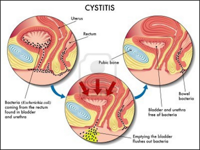 http://www.pusatmedik.org/2016/09/sistitis-akut-definisi-penyebab-dan-pengobatan-serta-gejala-klinis-penyakit-sistitits-akut-menurut-ilmu-kedokteran.html