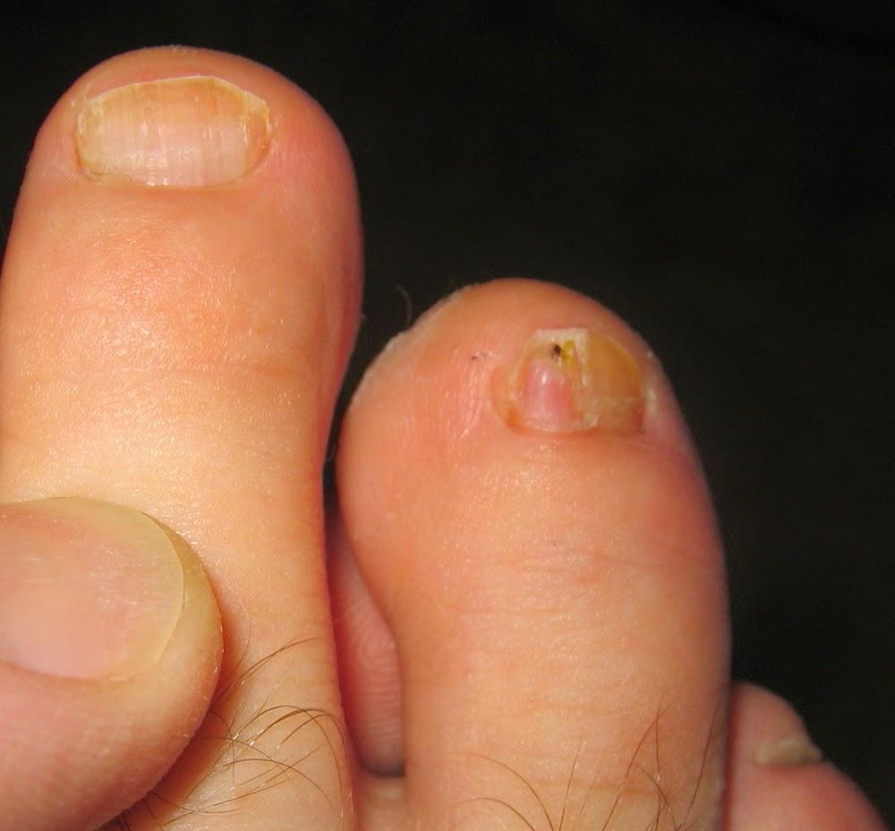 Understanding Toenail Fungal Infections : Nail Treatment Center