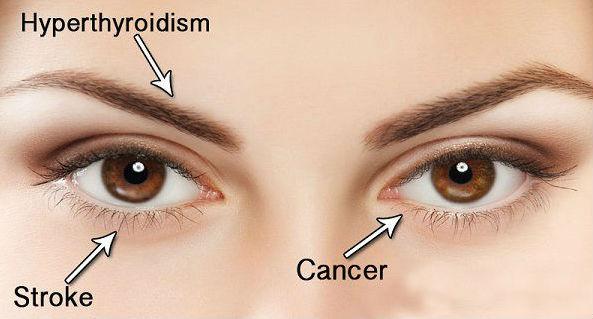 Penyakit Ini Bisa Dideteksi dari Kondisi Mata