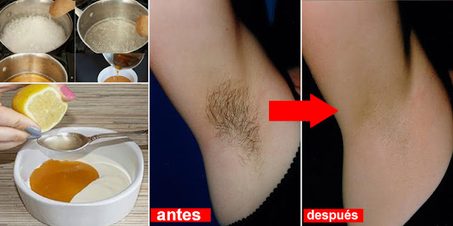 No Pain - How To Remove Armpit Hair With Easy Ways!