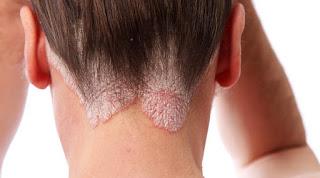 Gambar Obat Gatal di bagian belakang leher ada kulit keras merah bersisik paling ampuh