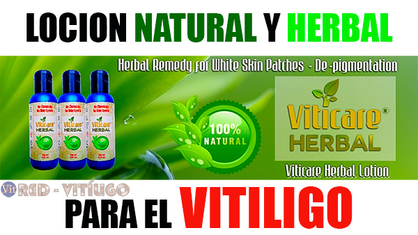 Tratamientos Natural y Herbal Para el Vitiligo