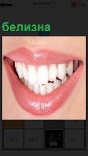 Показан открытый рот , в котором белизна всех зубов поразительная