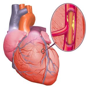 Obat Herbal Jantung Koroner TerAmpuh