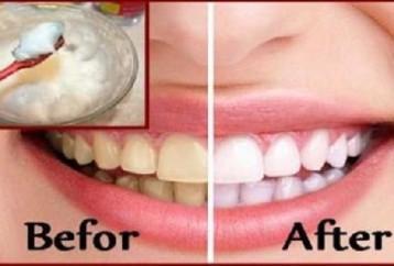 Ingin Gigi Anda Putih Bersinar   Kamu Wajib Coba Cara Yang Sangat ... b36b7770f1