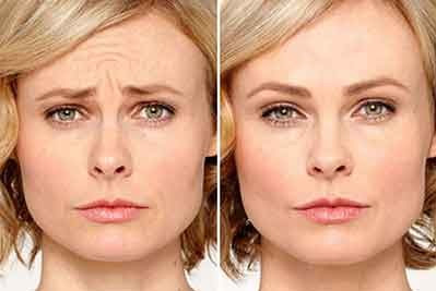 masque pour effet Botox