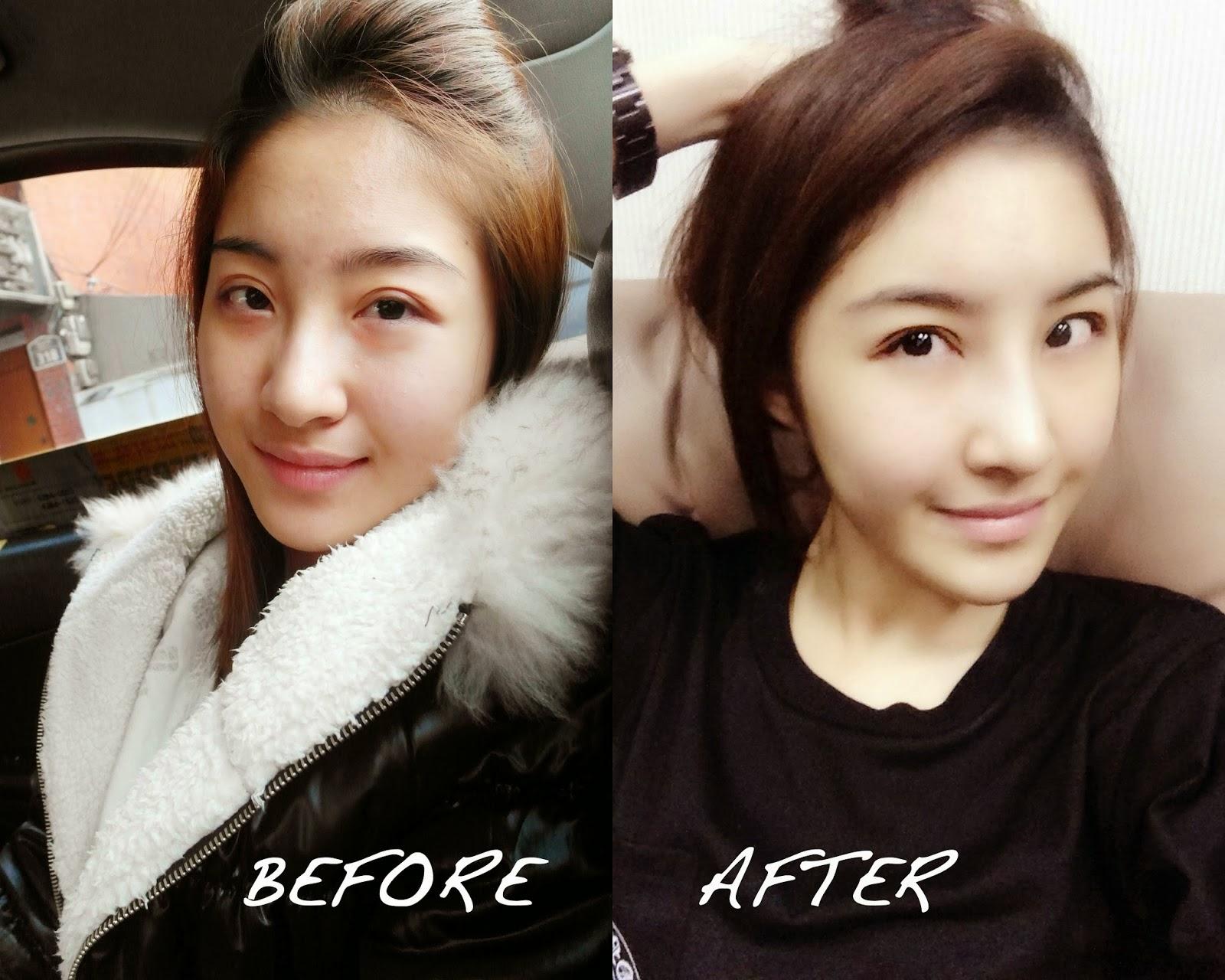 Thay đổi khuôn mặt nhờ bơm mỡ tự thân, cắt mí mắt Hàn Quốc kết hợp phẫu thuật nâng mũi sline