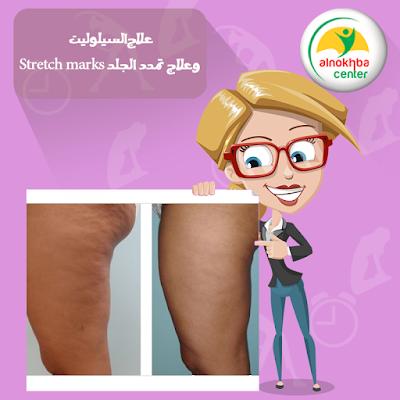 علاج السيلوليت وعلاج تمدد الجلد Stretch marks