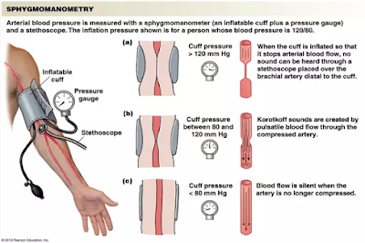 measuring_arterial_pressure