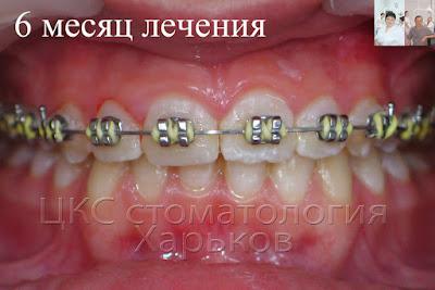 6 месяц ортодонтического лечения