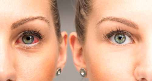 get rid of red eyes: amazing ways & health tips