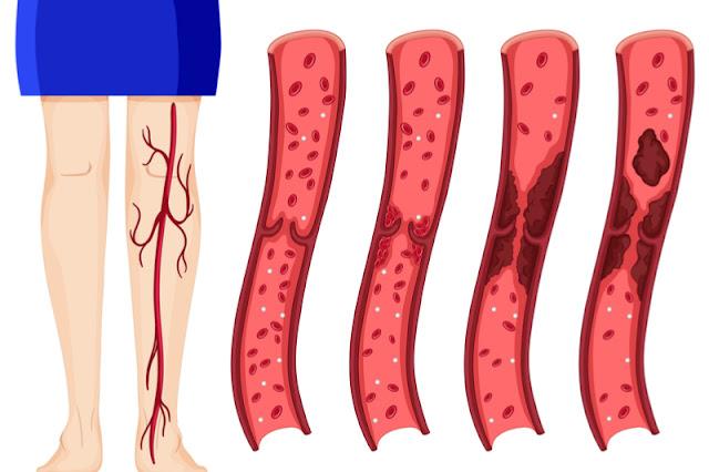 8 предупреждающих симптомов образования сгустка крови (тромба), которые нельзя игнорировать! Рецепт от тромбов в видео!